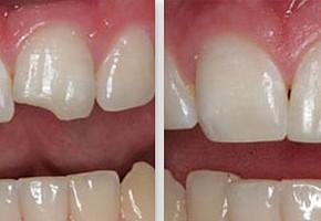 «Денталика», стоматология фото 13
