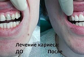«Денталика», стоматология фото 4