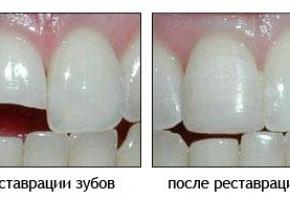 «Денталика», стоматология фото 14