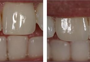 «Денталика», стоматология фото 12